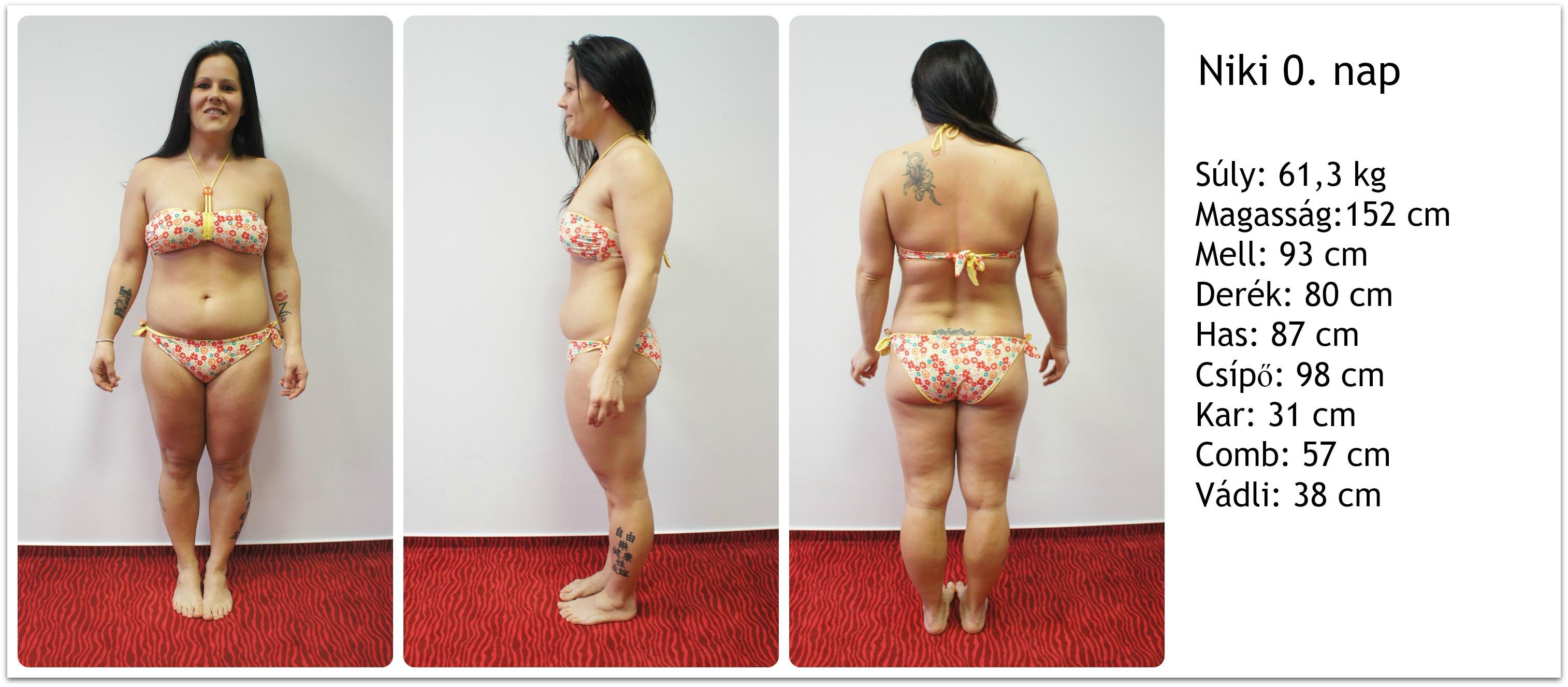 57 kilót fogyott, megműtette a melleit és a hasát, utálja magát - Szépség és divat | Femina