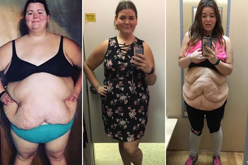 drámai fogyás képek előtt és után)