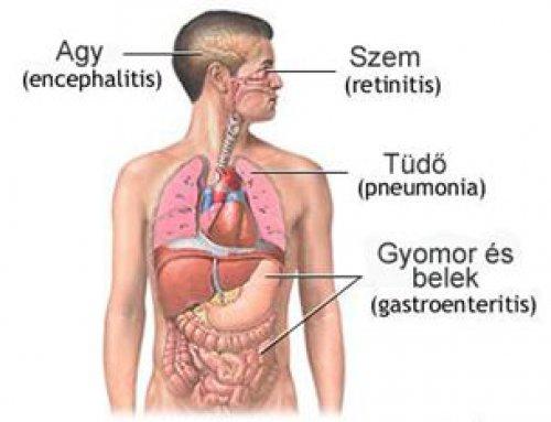 tüdő tályog fogyás