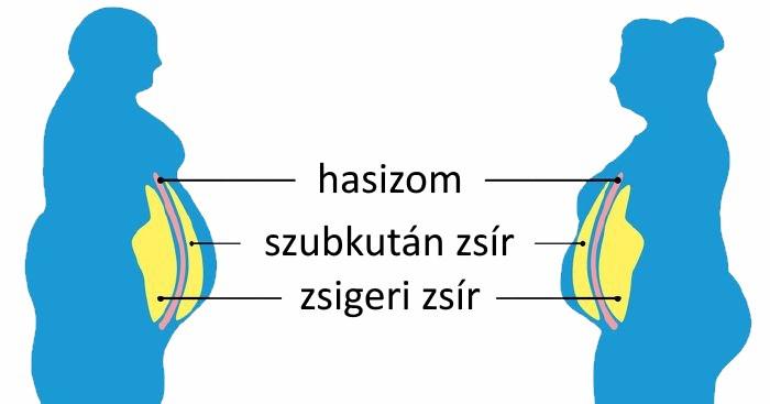 Távolítsa el a kötény zsírt - Hogyan kell eltávolítani a kötény hasát otthon
