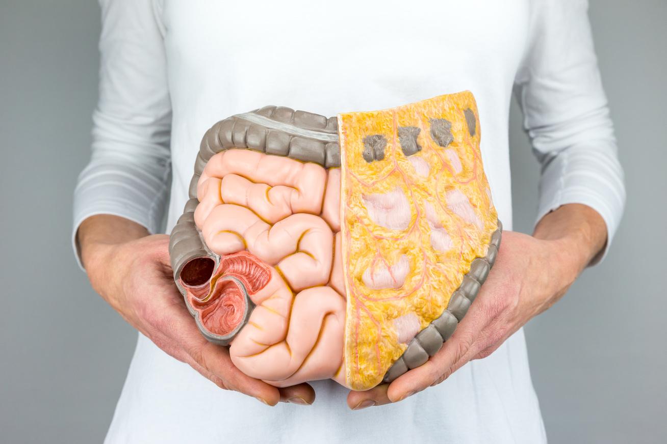 a legjobb módszer a bél fogyásának csökkentésére érett nő fogyás