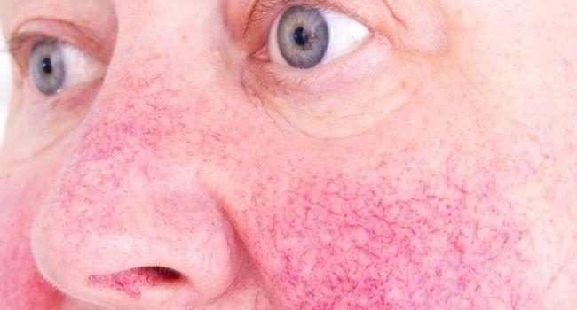 5 kevésbé ismert dolog, ami fokozza a rosacea tüneteit