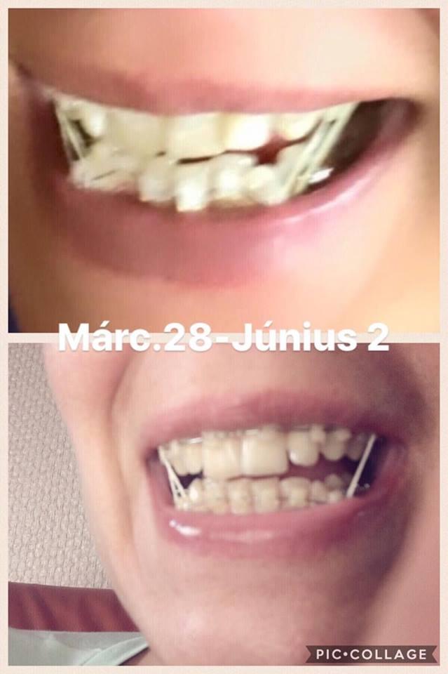fogyás fogszabályozás