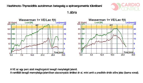 Hypertrophy-Specific Training [HST]