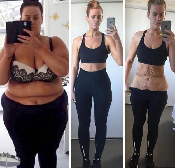 Súlycsökkenés 15 kg előtt és után, Mi történik, ha 50 kilót fogysz? Megmutatjuk!