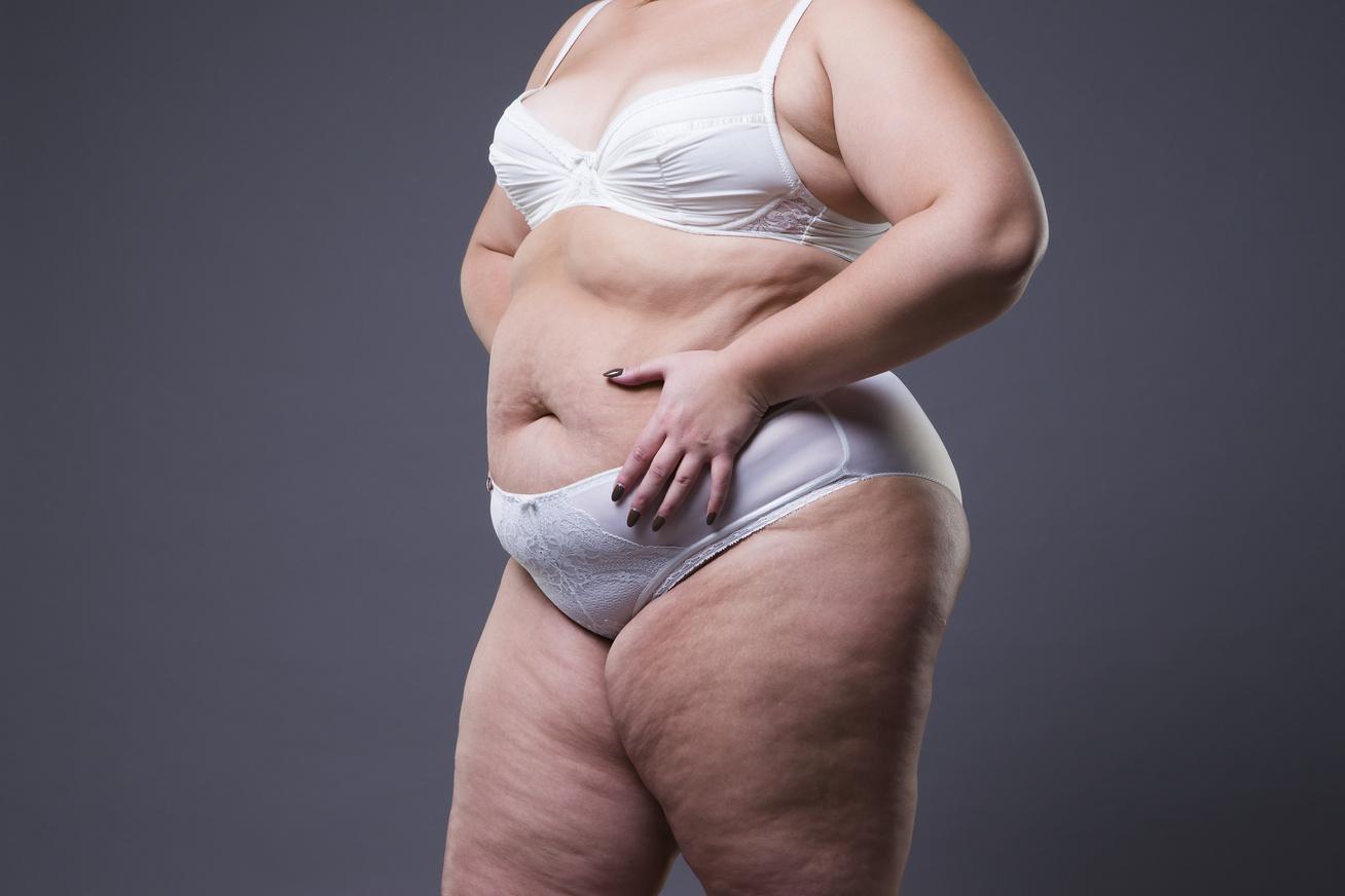 hogyan éget el a kövér zsírt?