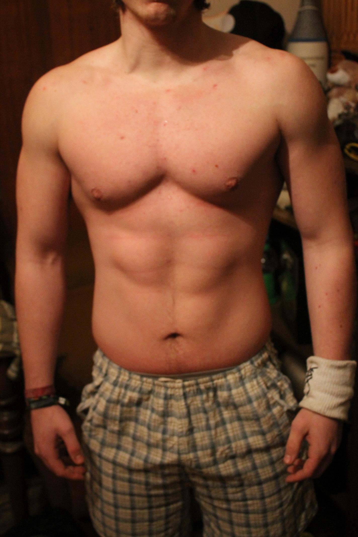mit csináljak a megnyúlt, lógó bőrömmel gyors zsírveszteség, fogyás után? - jay's workout
