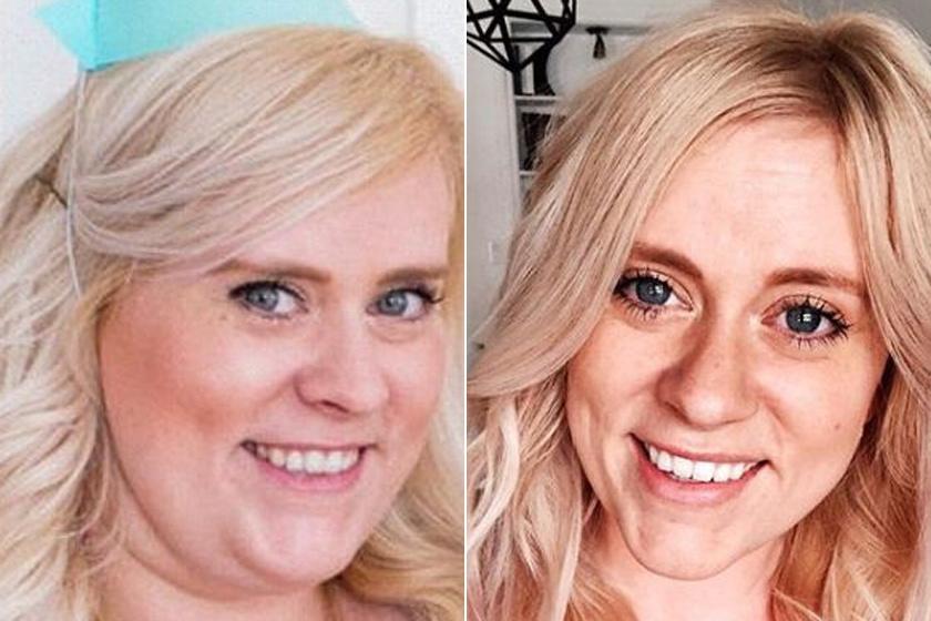 Női arcok fogyás után - Fogyókúra   Femina