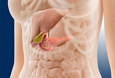 hasnyálmirigy- gyulladás tünetei fogyás fogyás 40s