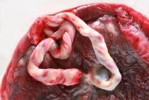 hipofízis daganat eltávolítása és fogyás keserű dinnye zsírégető