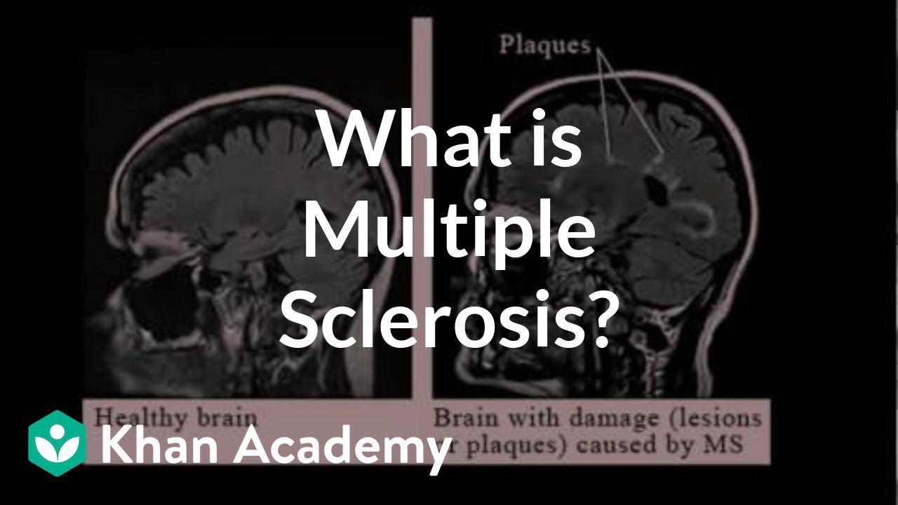 látómező a sclerosis multiplexben)