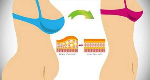 Hogyan lehet eltávolítani a has zsír